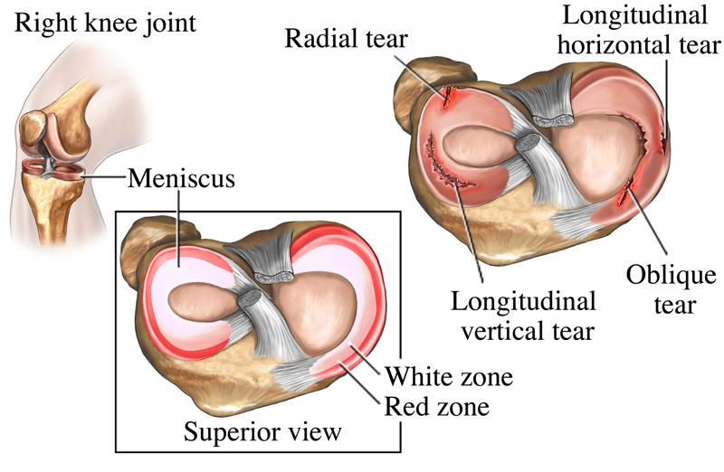 meniscus-injury